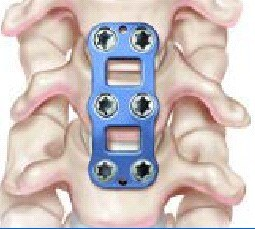 Metal plate for anterior cervical discectomy and fusion (acdf)